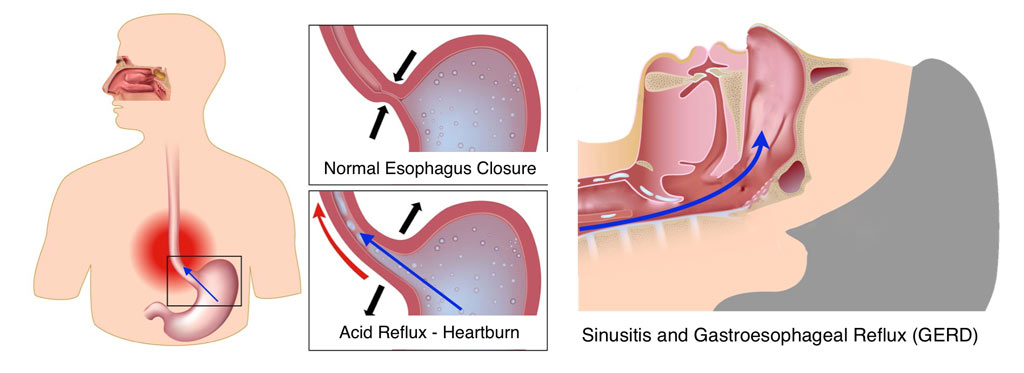 Recurrent ear and sinus infections in adults