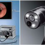 bronchoscopy procedures in children