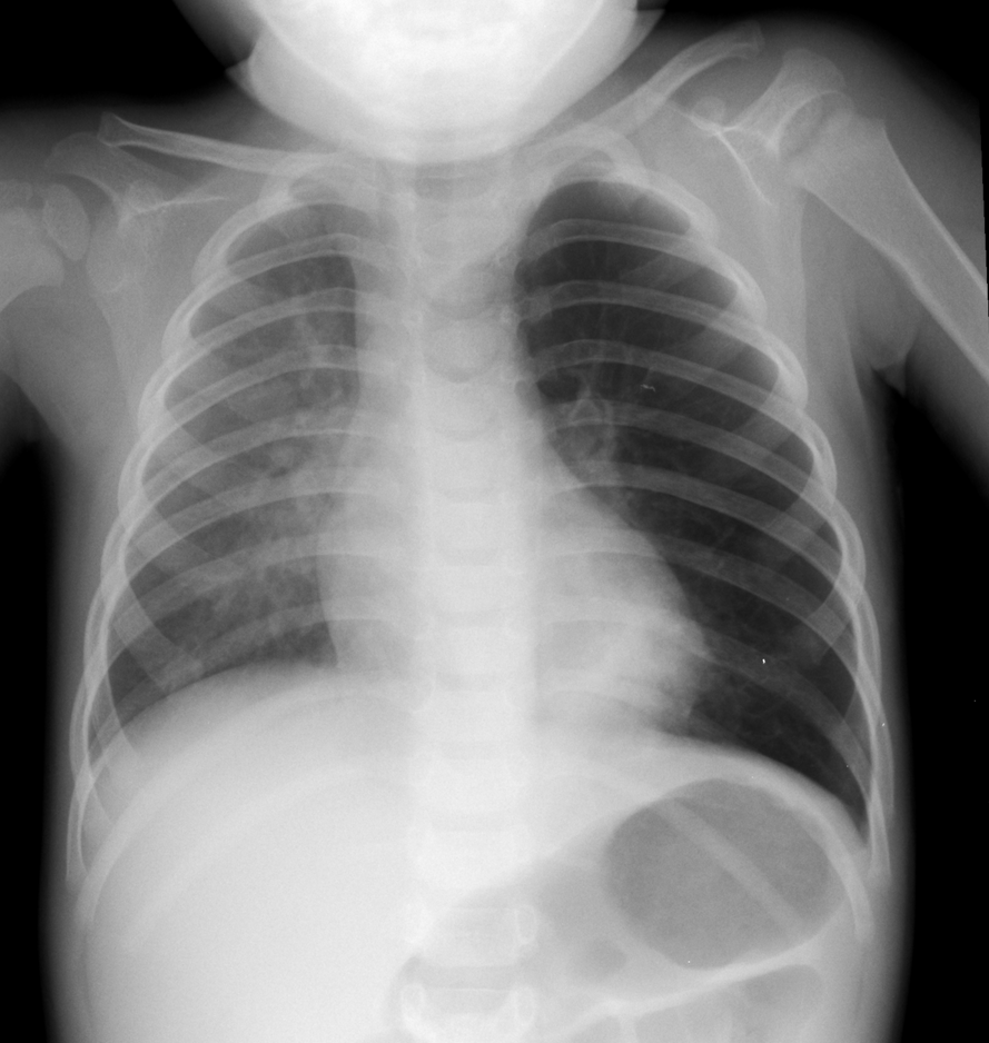 chest x ray A chest x-ray is an imaging test that uses x-rays to look at the structures and   consider writing down all x-rays you get, including past scans and x-rays for.