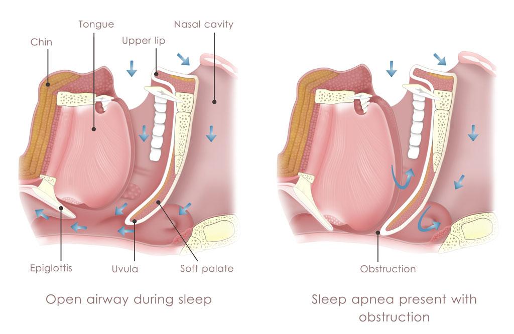 obstructive-sleep-apnea-anatomy copy - Pediatric Pulmonologists