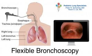 Dr Schochet performs bronchoscopy