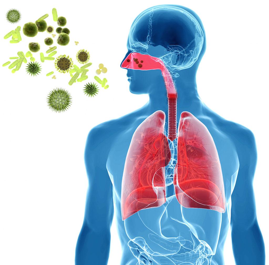 _pollen,-virus-or-influenza-infection-copy - Pediatric Pulmonologists