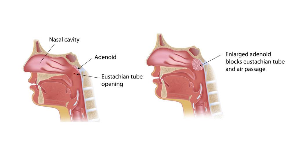 Adenoid swollen in adults