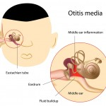 Middle ear infection causes postnasal drip in children