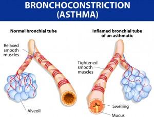 asthma, postnasal drip or reflux