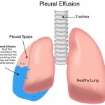 Pleural effusion can occur if your child has a lung inflammation or bacterial infection from Recurrent Pneumonia Children