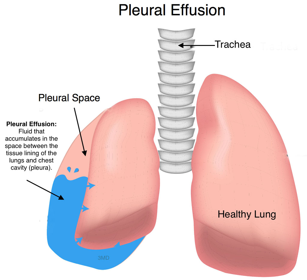 pleural-effusion - pediatric pulmonologists, Skeleton