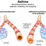 asthma symptoms in diving medicine