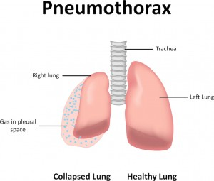 Pneumothorax: Collapsing of a lung due to the escaped air leaking into the chest cavity