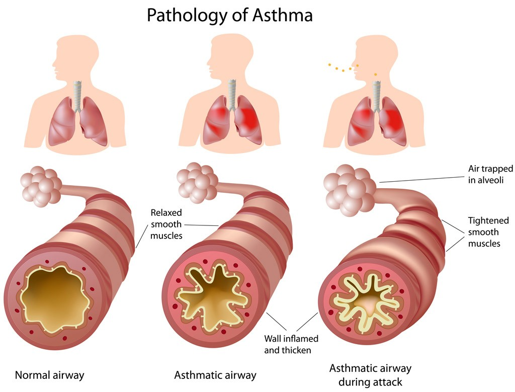 asthma coughing, wheezing, shortness of breath and/or chest tightness