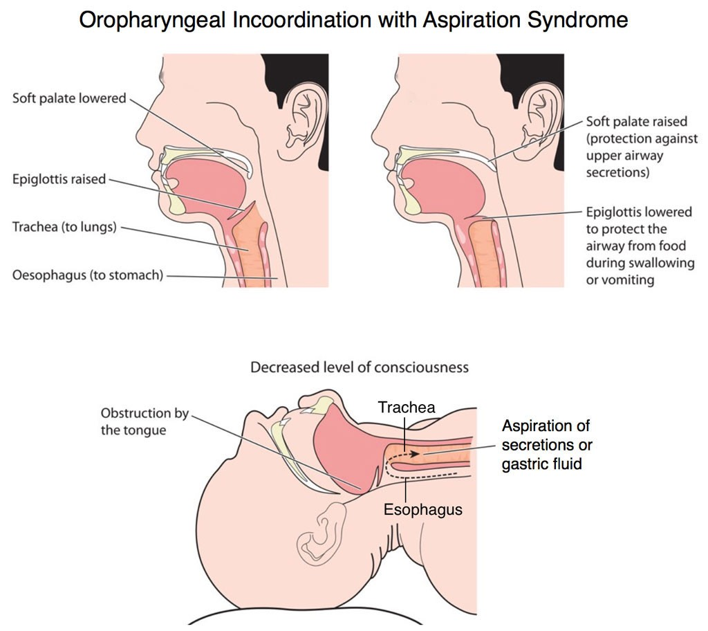 Oropharyngeal Incoordination with Aspiration Syndrome from Recurrent Pneumonia Children