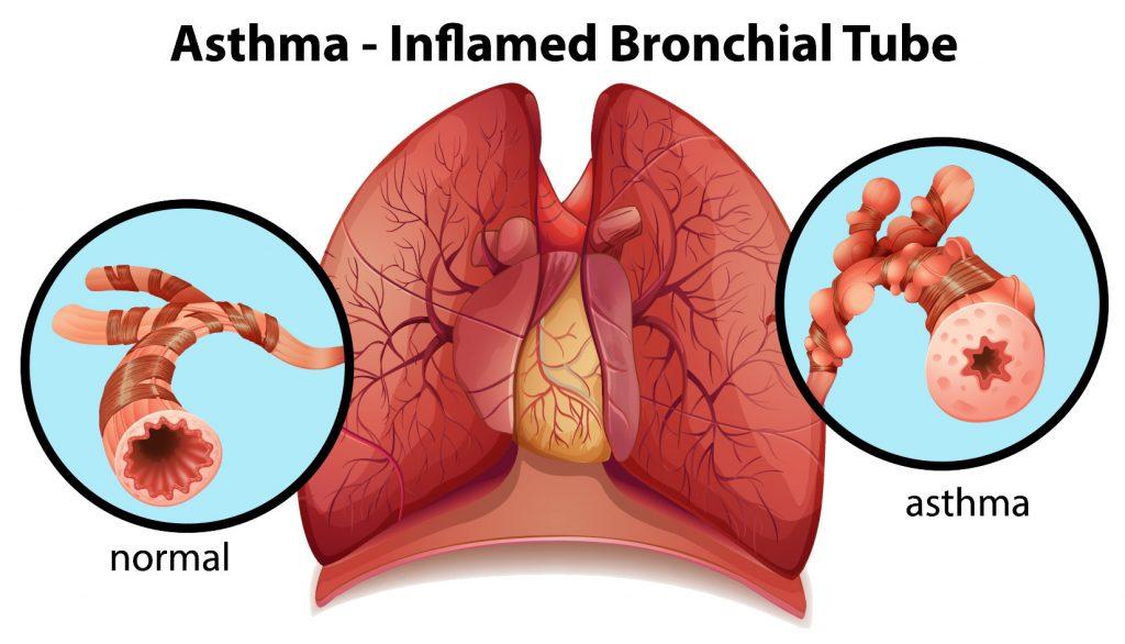 Severe Asthma in Children - Pediatric Pulmonologists in Plano